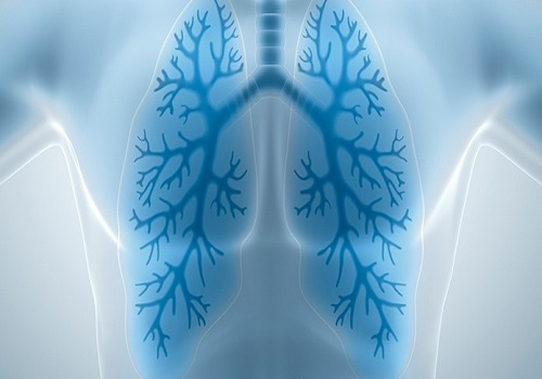 4 Things You Should Know About Tuberculosis