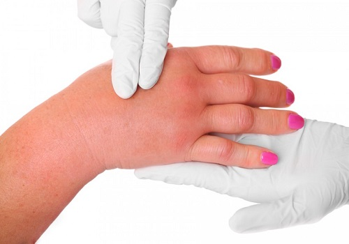 List Of Some Common Allergic Reactions