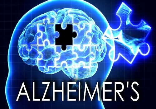 Everything You Should Know About Alzheimer's