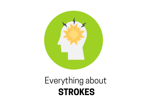 Answering All Your Questions About Stroke