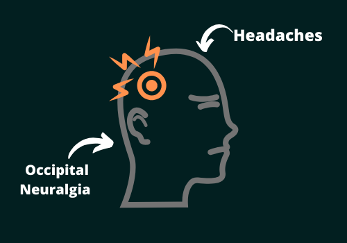 Headache And Occipital Neuralgia- Know The Difference