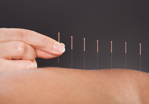 5 Major Benefits Of Acupuncture During Pregnancy