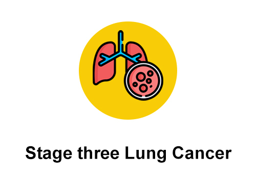 What To Know About Stage 3 Lung Cancer?