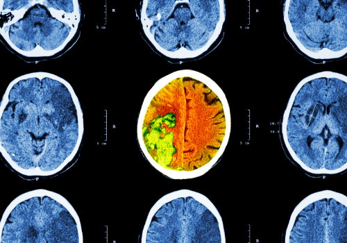 Save Your Brain From Injury - Win Over A Basal Ganglia Stroke