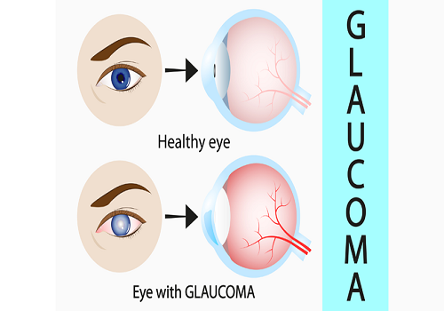 Knowing Different Types Of Glaucoma
