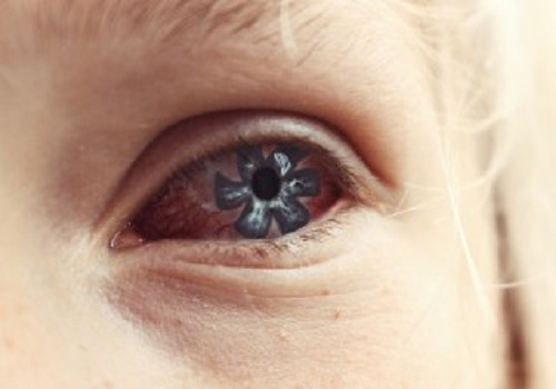 Twitching of Eyes: Know all about it
